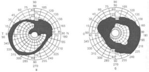 Изменение периферических границ поля зрения при глаукоме