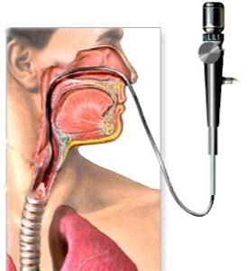 бронхоскопия камский доктор